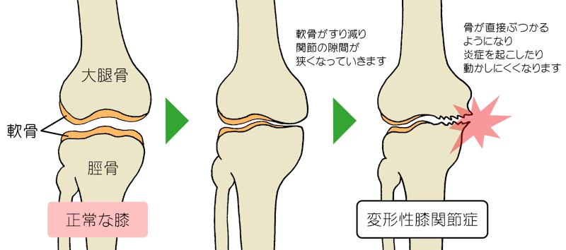 膝痛 | 草加市の整体なら鍼灸整体院ビ・プラス